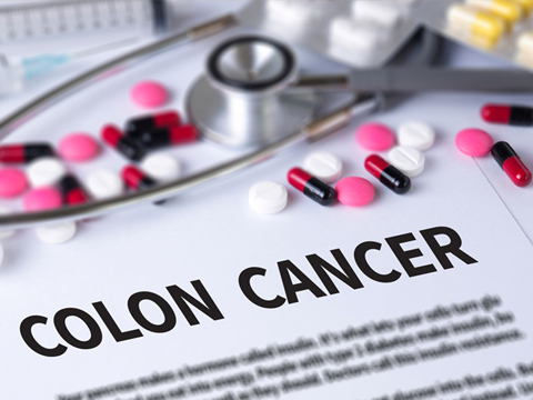 Colon Cancer - On the Wrong Side of 40
